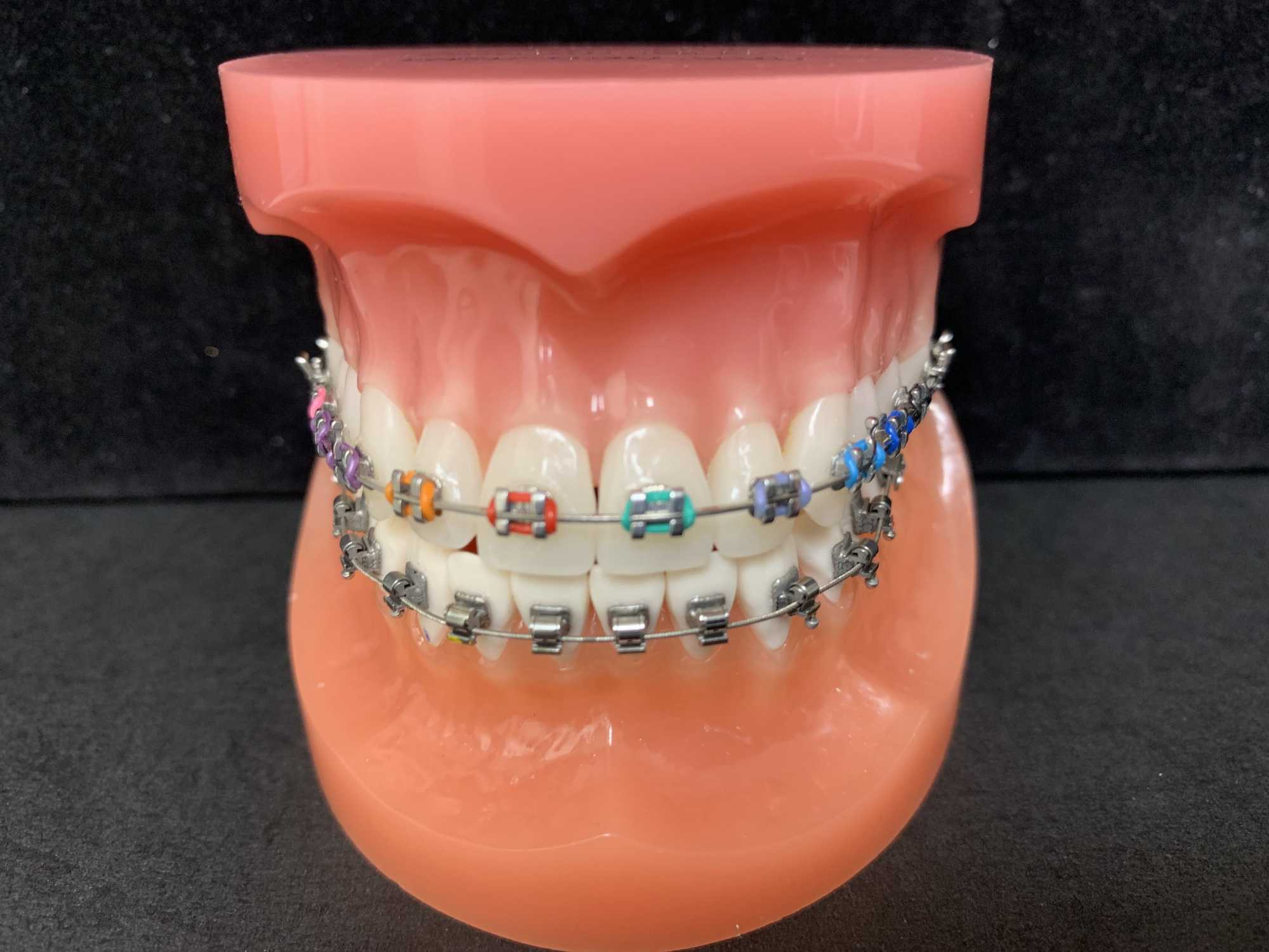metal colored braces