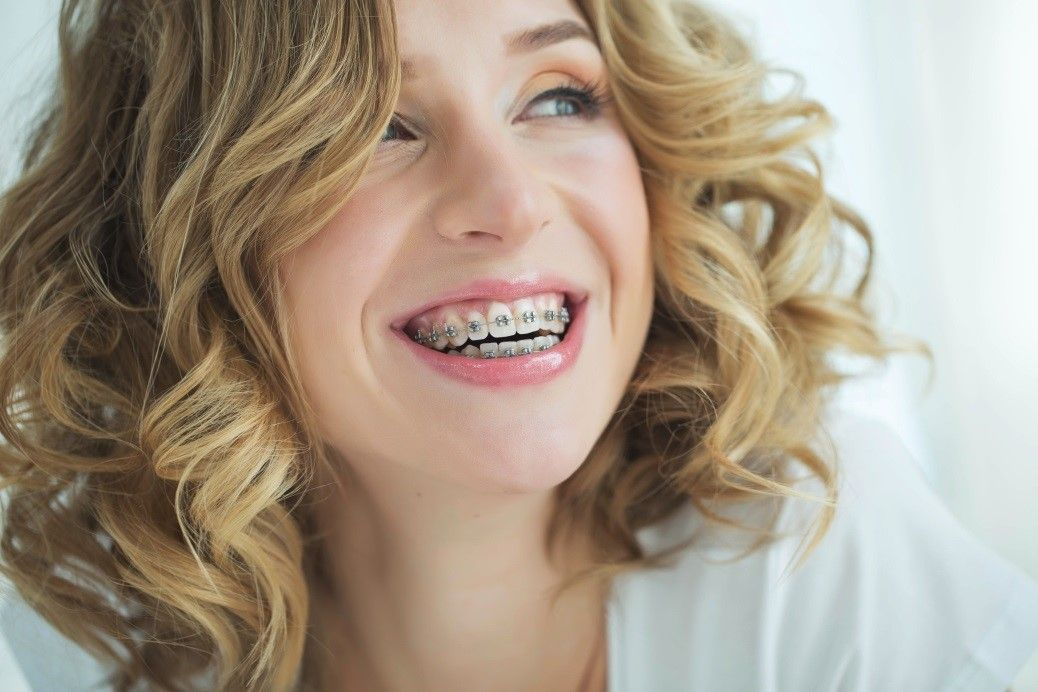 affordable braces mississauga
